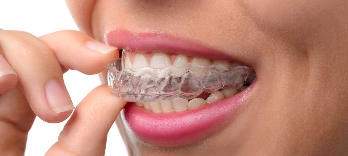 Niewidoczny aparat ortodontyczny Invisalign.