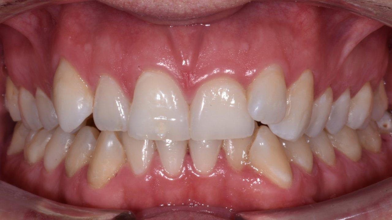 1 Efekty leczenia Przed i Po Katarzyna Gliwa Stomatologia